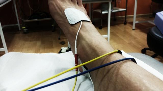 Lesion Injury Running Correr Entrenar